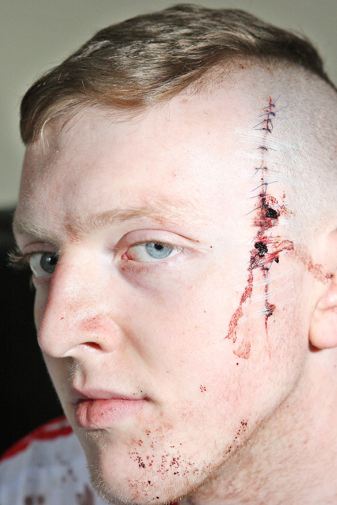 Tomás Magennis was held down on the sofa and slashed with a  Stanley knife. The appalling wound required 13 stitches