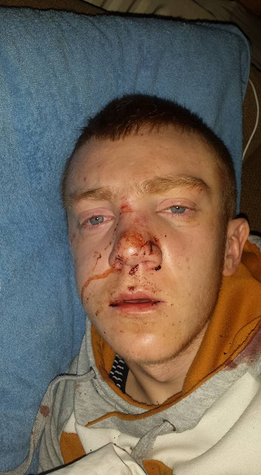 Nathan Daly (16) pictured after the attack in a photo posted on his brother's Facebook page