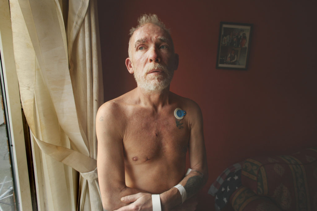 VICTIM: Gerard Corrigan recovering from his wounds at home